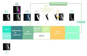 Funcionamiento del software para crear la secuencia de STIR sintética.