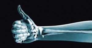 huesos-1