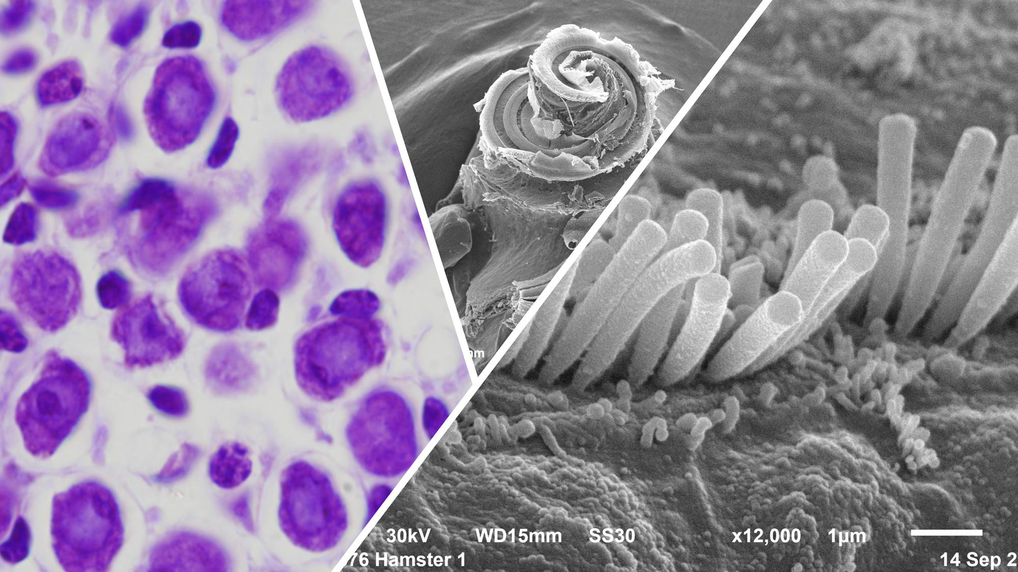 Microscopía óptica y electrónica